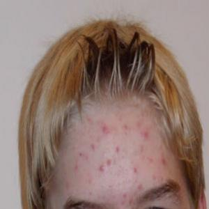 10 Mitos sobre a acne