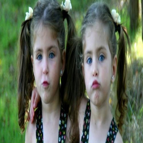 Gêmeos idênticos não possuem o mesmo DNA, diz surpreendente estudo